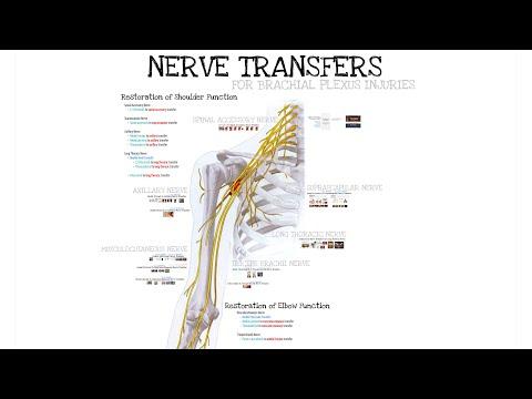 Przeniesienie (transfer) nerwów - przywrócenie czynności stawu ramiennego i łokciowego