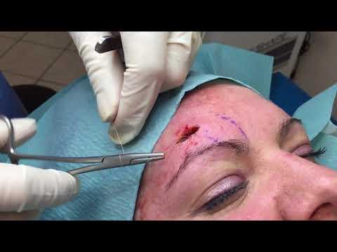 Le masque avec la soude des rides pour la peau sèche de la personne