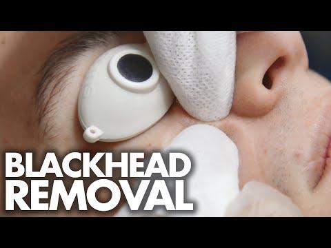 Pinakamahusay na hydrating mask sa paligid ng mga mata