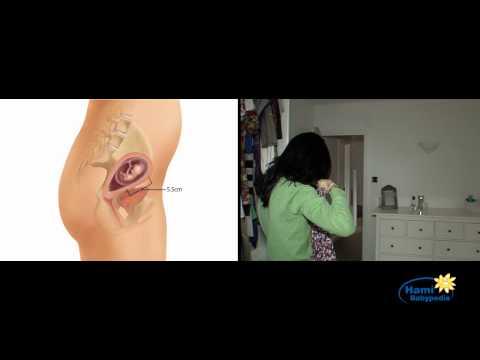 Papillomavirus et desir de grossesse
