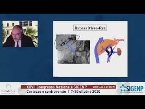 MesoRex e cavernoma della vena porta – Mesorex Bypass