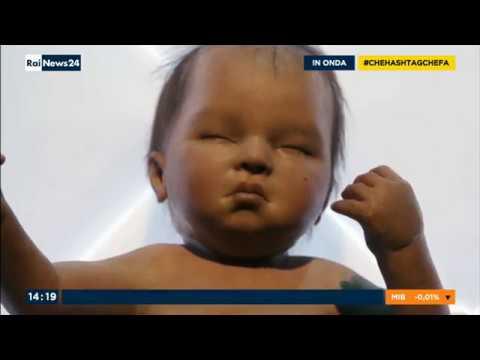 Chi ha guarito la dermatite atopic a bambini