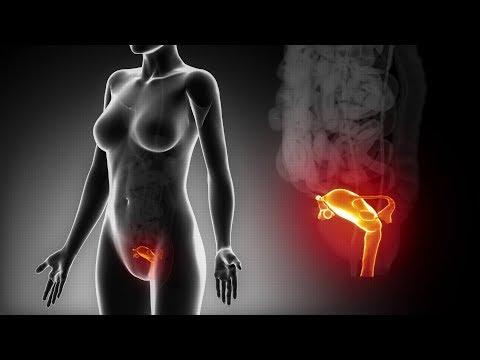 Traitement de don d'ovules. Préparation de la cavité endométriale pour recevoir l'embryon