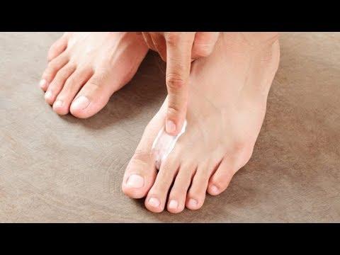 Koślawe kolana deformacji u dzieci leczonych Komorowski wideo