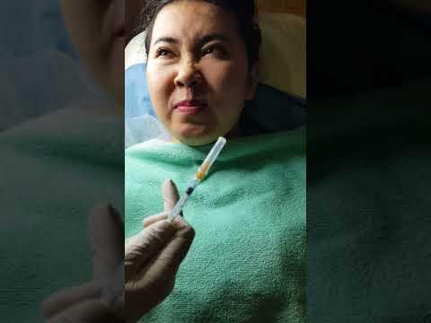 cara menghilangkan kerutan, menghilangkan kerutan dengan botox, 081 331 89 7878