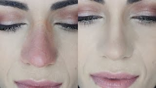 How To Cover Nose REDNESS (And MAKE IT LAST) | MakeupAndArtfreak
