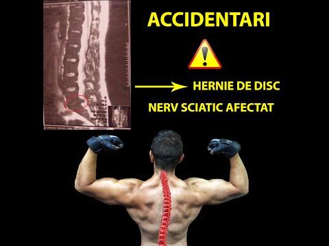 Inflamația articulației cotului și a ligamentelor
