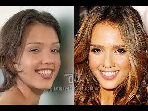 Celebrities Teeth Operation Before After