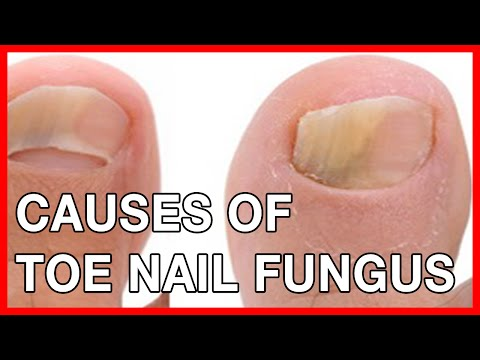 , title : 'Nail and Toe Fungal Infection: Causes, Treatment, Home Remedies'