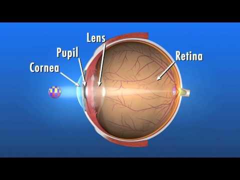 Co to jest zaćma i jaki ma wpływ na nasz wzrok?