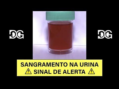 Este un medicament parazitar pentru corpul uman