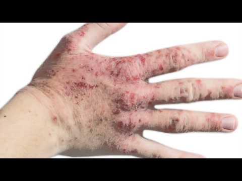 Łuszczyca skóry na forum