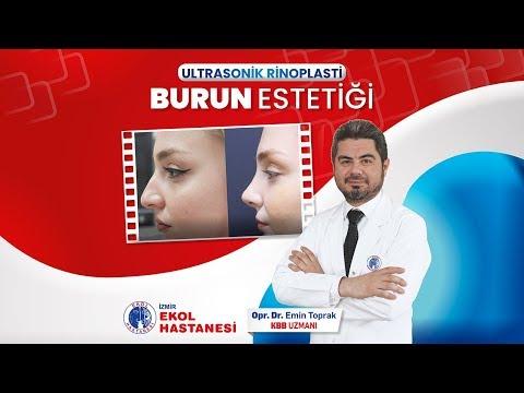 Ultrasonik Rinoplasti Burun Estetiği - Opr. Dr. Emin Toprak - İzmir Ekol Hastanesi