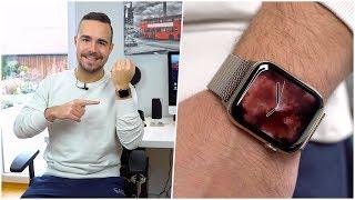 Apple Watch Series 4 im Langzeittest nach 2 Monaten Nutzung (Deutsch)   SwagTab
