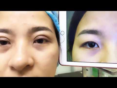 Chữa Sụp Mí Bằng Công Nghệ Cắt Mí Mani Mini Deep 5D Tại Dr.Hải Lê.