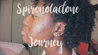 Clear Skin Journey | Spironolactone 25mg 2 Months