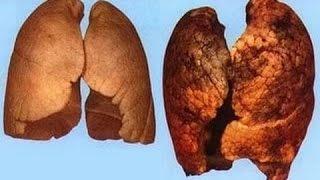 Очищение легких | Как очистить легкие курильщика | #послекурения #легкиекурильщика #edblack
