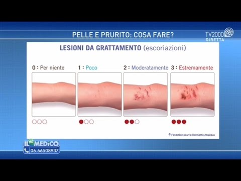 Dopo recisione di unincrinatura anale la cucitura si è disperduta