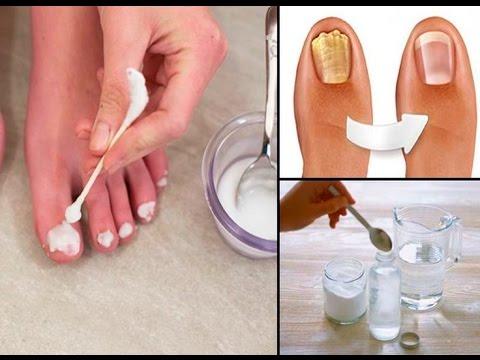 El hongo en la piel de las manos de la foto el tratamiento del ungüento