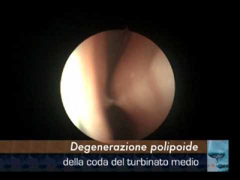 Trattamento della prostata Ufa