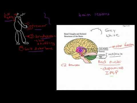 Demencja w chorobie Parkinsona