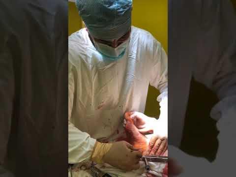 Артродез голеностопного и таранно-пяточного сустава