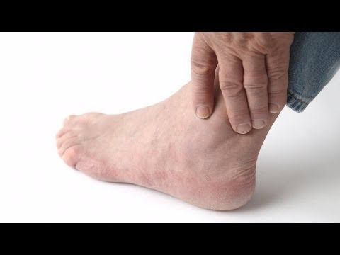 Video How to Recognize Gout Symptoms | Foot Care