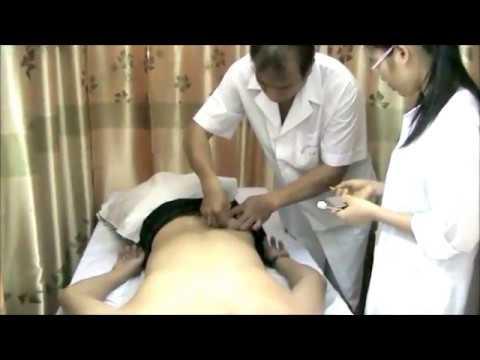 Prostata-Sekret Analyse dessen, was es ist