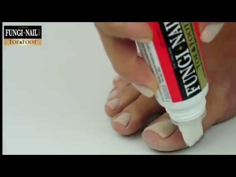 Terbinafin gribok zwischen den Fingern der Beine