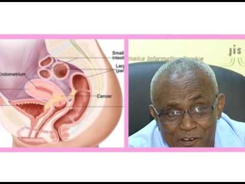 Helmintox vai vermox