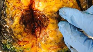 Breast Cancer (Breast Tissue, BRCA genes, Biopsy, Lumpectomy, Mastectomy, Mammogram, & Treatment)