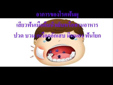 Monocytosis กับเวิร์ม
