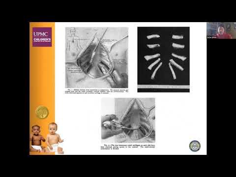 Deformacje klatki piersiowej u dzieci - klatka piersiowa lejkowata, kurza i inne