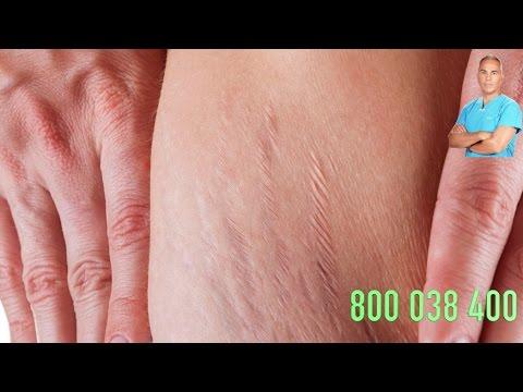 Esercizi di perdita di peso di quadri di stomaco