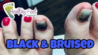 Double Lifted Nails Removed , Lifted Toenails Removed After Toenails Turn Black