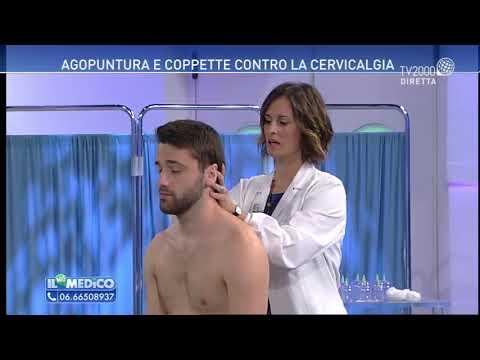 Il Mio Medico - Dolore cervicale e agopuntura