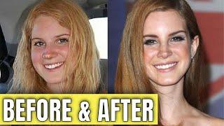 Lana Del Rey: Plastic Surgery (2020)
