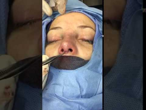 Open rhinoplasty 0