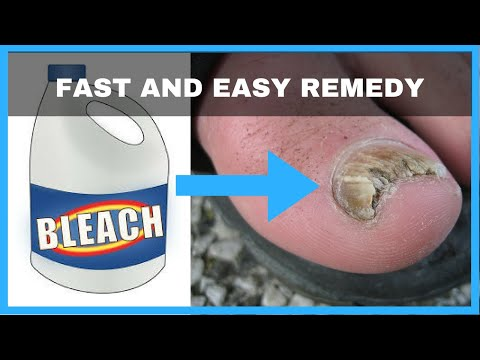 , title : 'How to Get Rid of Toenail Fungus with Bleach - Toe Fungus Journey