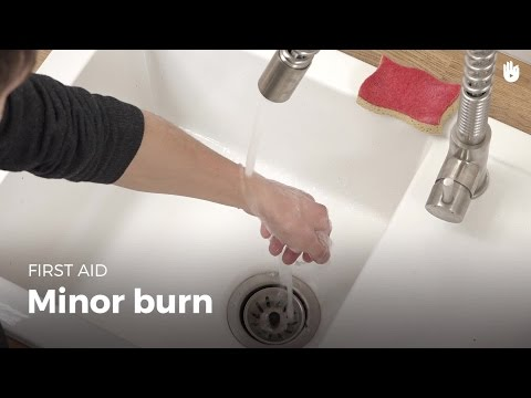 Video First Aid: Minor Burn