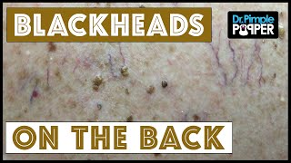 Back Blackhead Extractions after Mohs Surgery