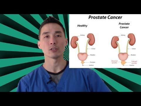 From prostatitis halavyt price