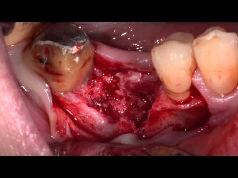 Имплантация при горизонтальной атрофии