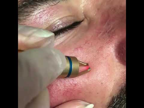 Lazerle Kılcal damar silme