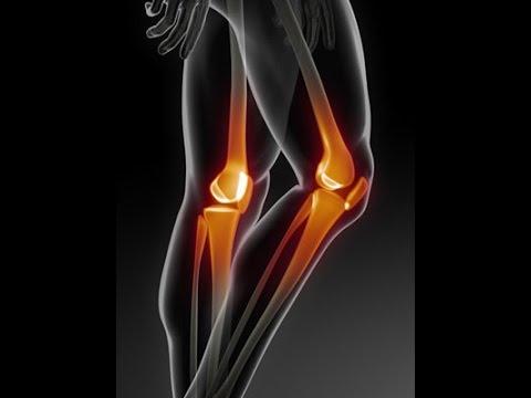 Jak leczyć zwyrodnieniowe-dystroficzne zmiany stawu kolanowego