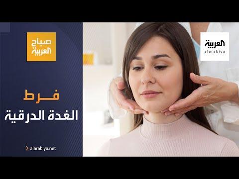 العرب اليوم - شاهد: ما هو فرط نشاط الغدة الدرقية؟