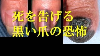 死を告げる黒い爪の恐怖