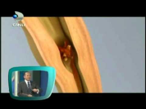 Böbrek Taşı Ağrısı, Taş Düşürme - Prof.Dr. Sinan Zeren