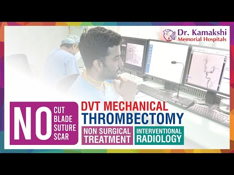 drkmh-Non-Surgical Intervention | DVT Mechanical Thrombectomy