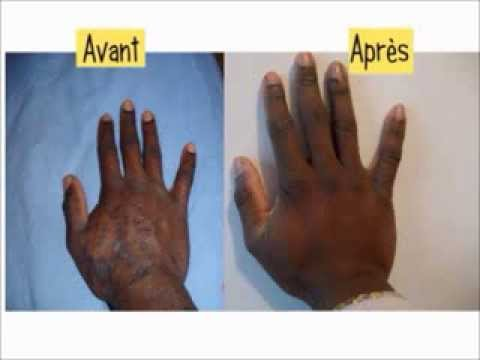 Les patches jaunes au psoriasis